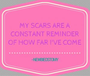 """My scars are a constant reminder of how far I've come"" - NewbieOstomy"