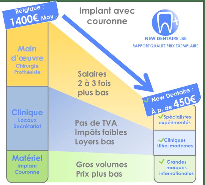 implant dentaire explication prix bas sans réduire la qualité