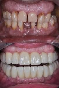 Implant dentaire bridge couronnes esthétique avant et après