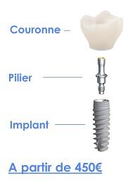 Tourisme dentaire couronne-pilier-implant 450€