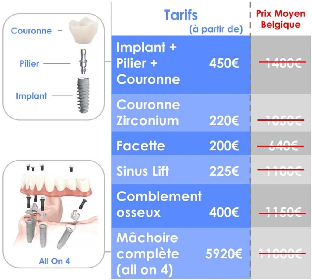 implant dentaire prix 450€