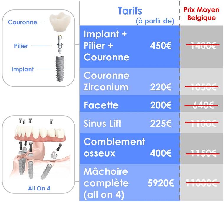 implant dentaire prix 450€ en Roumanie