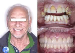 avant après implant dentaire