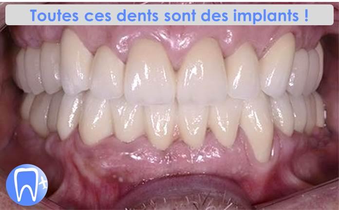 implant dentaire pas cher belgique