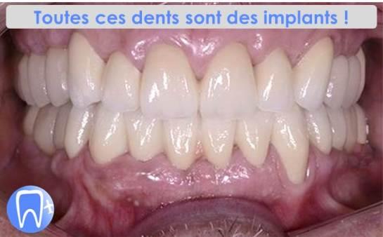 Implants dentaires dans un pays d'Europe