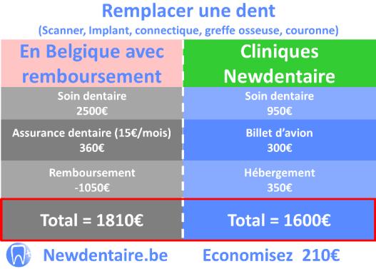 Comparaison du prix implant dentaire remboursé en Belgique Vs cliniques newdentaire