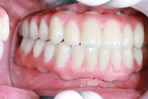 dentier sur implants haut et bas