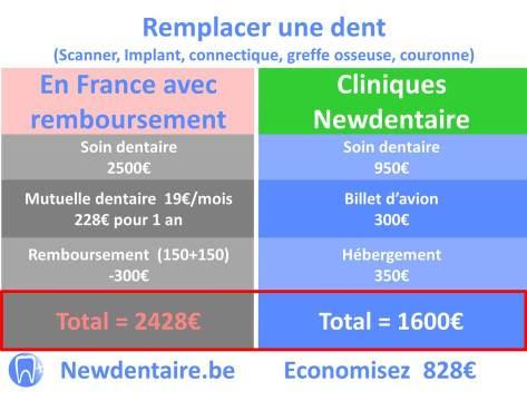 Remboursement implant dentaire France pour 1 dent