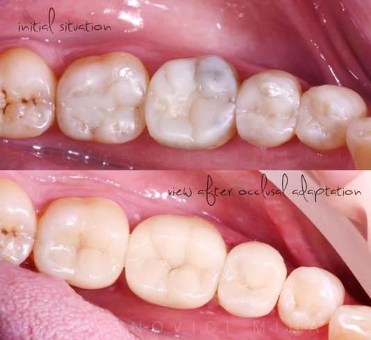 avant et après facette dentaire pour Bruxisme