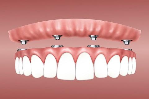 dentier fixe sur implant dentaire