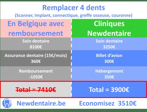 différence implant dentaire Bruxelles pour 4 dents