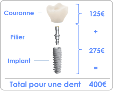 prix implant dentaire Bruxelles
