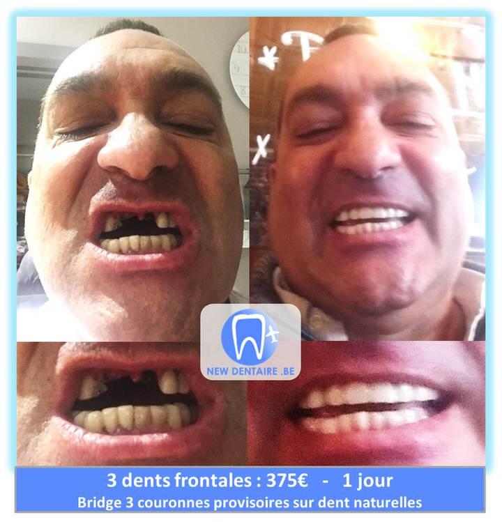 bridge 3 dents prix