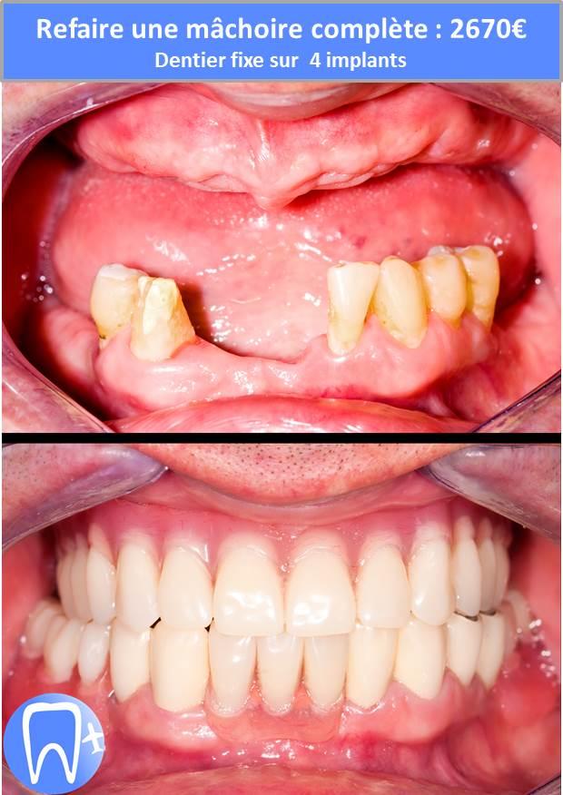 refaire sa dentition complete prix