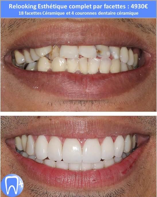 refaire ses dents avec facettes