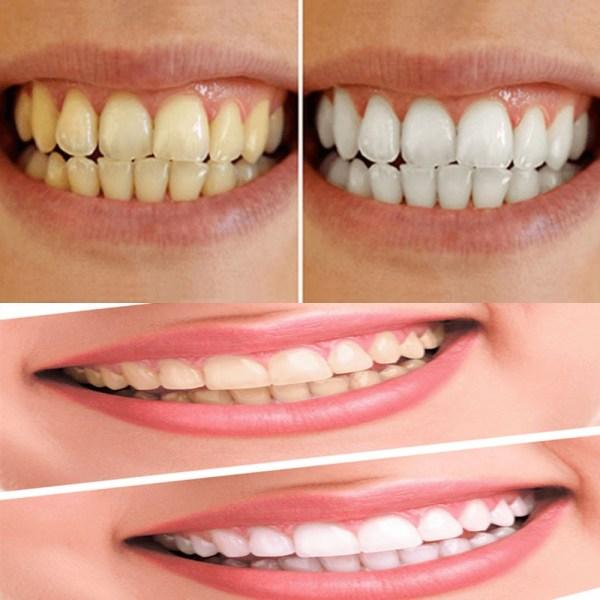 clareamento dental caseiro completo 5 gel 1 desensitizing D NQ NP 885003 MLB42089103297 062020 F Clareadores Caseiros Funcionam?