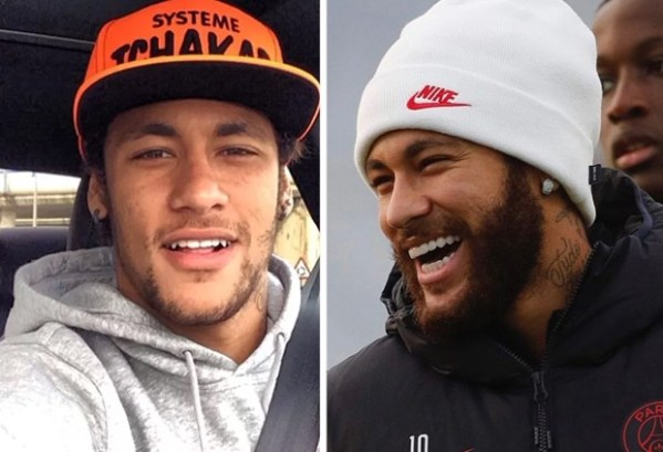 Neymar jr lente de contato dental