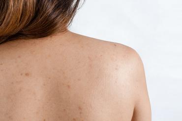 Tại sao chăm sóc da kỹ mà vẫn bị mụn? Giải đáp thắc mắc