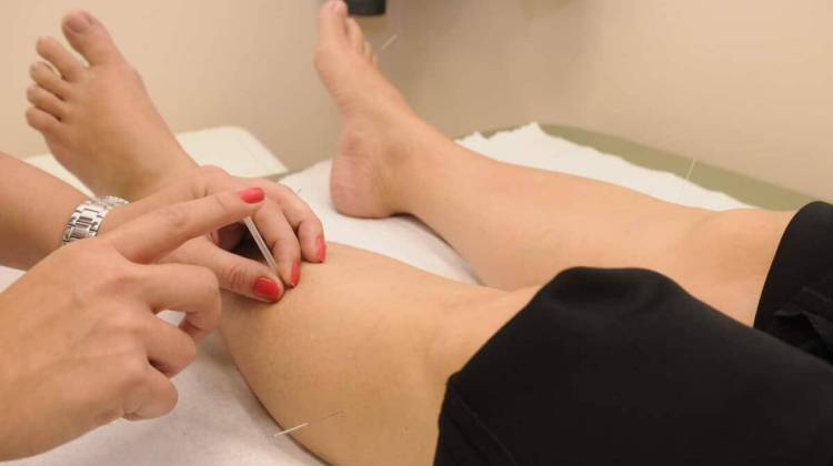 Person undergoing acupuncture treatment