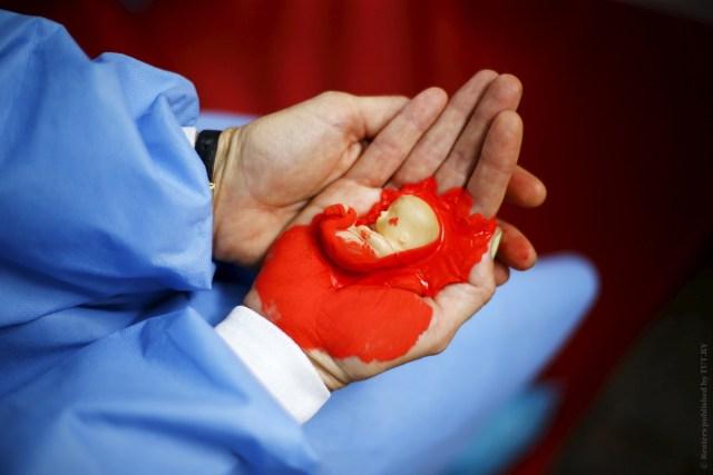 Ожидавший рождения мальчика житель Дагестана заставил свою жену сделать аборт