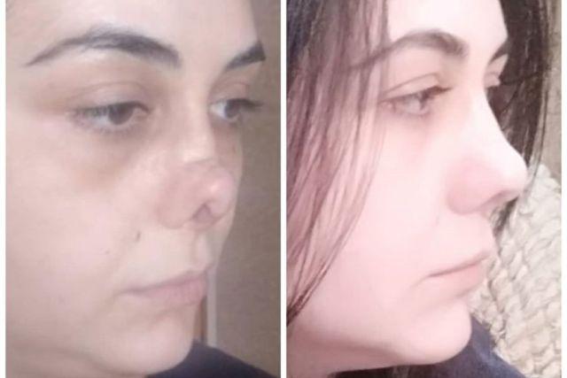 Пластический хирург помог исправить нос жертве неудачной операции во Владикавказе