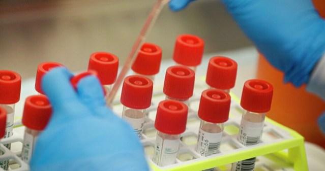 Коронавирус может привести к вспышке кори