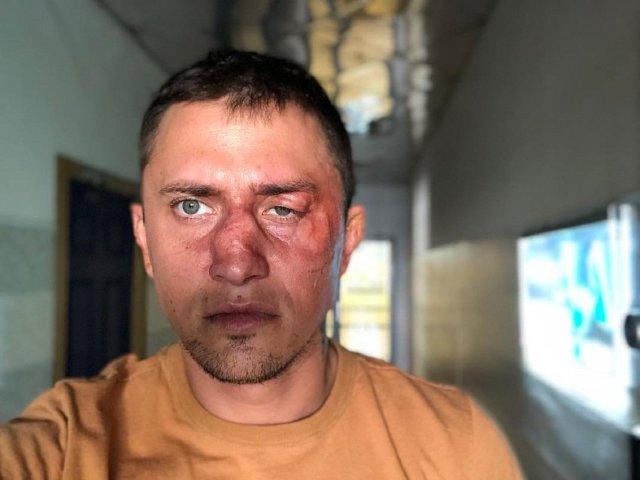 Следователи допросили после избиения актера Павла Прилучного
