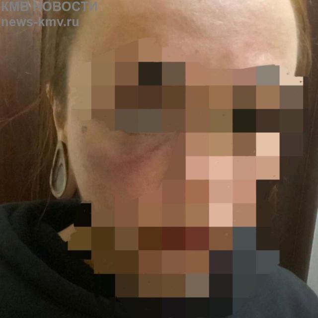 Ессентучанку избили в городской грязелечебнице