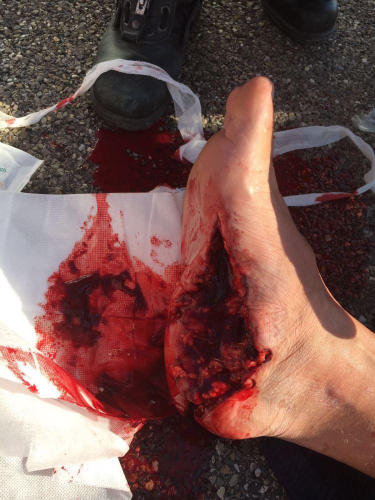 Blutstillung