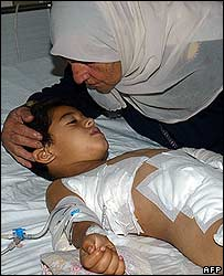 集束炸弹8月30日炸伤了6岁的阿巴斯