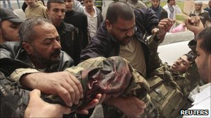 Palestinians push a wounded man on a stretcher after Israeli strikes on the Gaza Strip March 19, 2011.