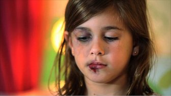 Model of a child from a tv ad aimed at reducing abuse