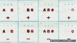 Blood type sensor