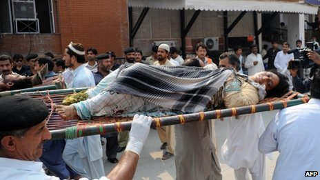 An injured victim of the Peshawar bus bomb blast, 27 September 2013