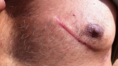 A Pakistani immigrant in Greece shows a scar following a stabbing by suspected Golden Dawn supporters