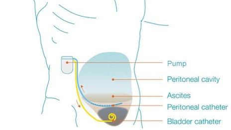 pump diagram