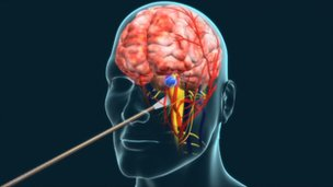 Illustration of endoscopic brain surgery