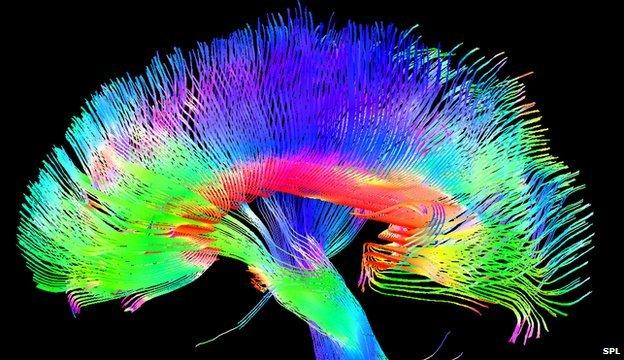 Coloured brain pathways