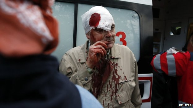 An injured man is treated in Donetsk. Photo: 28 April 2014