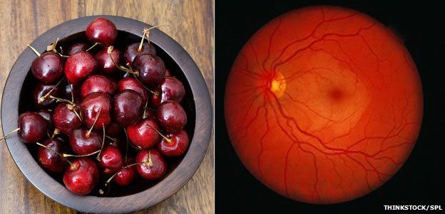 Blood vessels at the back of the eye