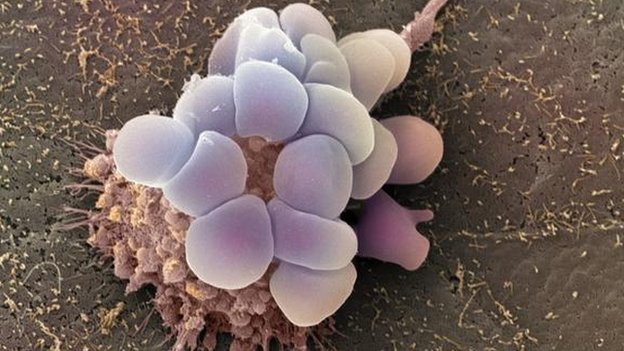 Ovarian cancer cell