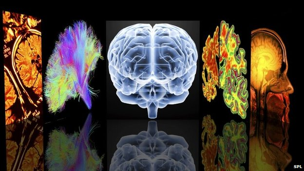 Conceptual computer artwork depicting neurology. From left to right: MRI brain scans, 3D dsi white matter brain scan, brain, Alzheimer's brain versus normal brain, MRI brain scan