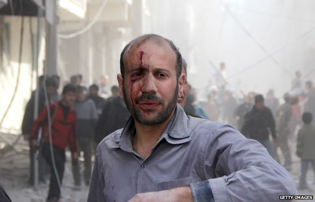 Barrel bomb victim