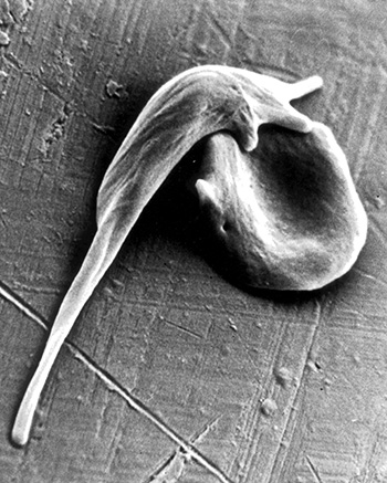 a sickle-shaped red blood cell