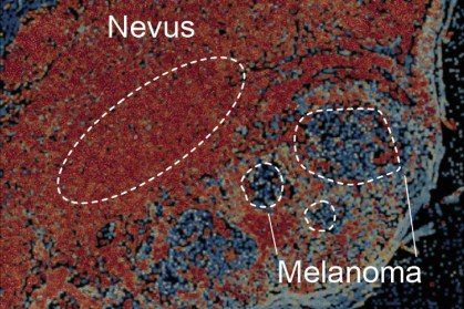 a benign nevus transitioning to a malignant melanoma