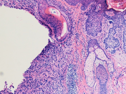 Cancerous tumour under the microscope