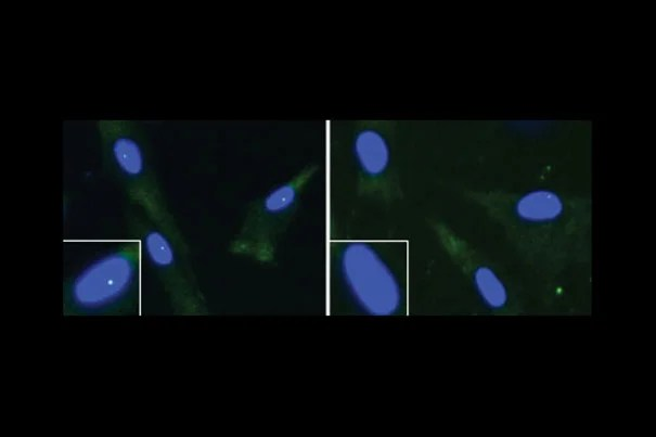 "These are fibroblasts from an unaffected individual (left) and an ALS patient with a FUS mutation. The cell nucleus is shown in blue and the ""gems"" are the green dots within the nuclei. The nuclei in the white boxes are magnified."