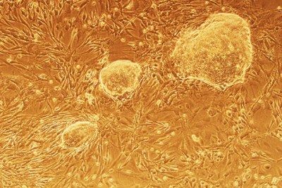 Induced pluripotent stem cell colonies generated after researchers at Harvard Stem Cell Institute suppressed the CAF1 gene.