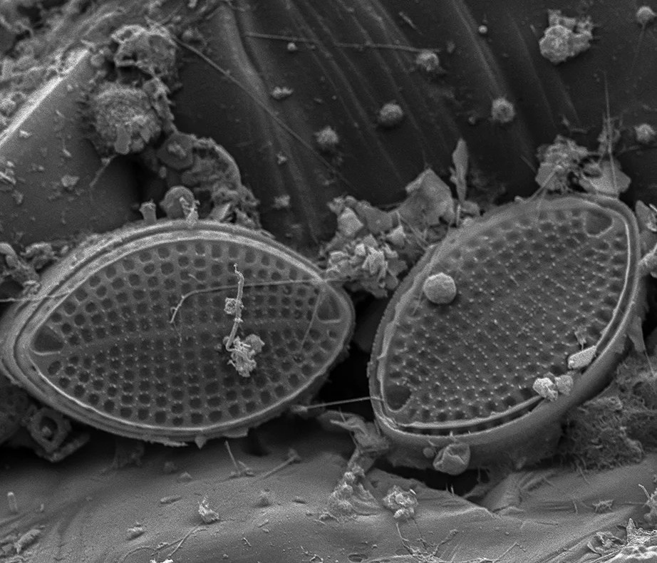 Diatoms imaged using a scanning electron microscope. Photo by Scott Chimileski