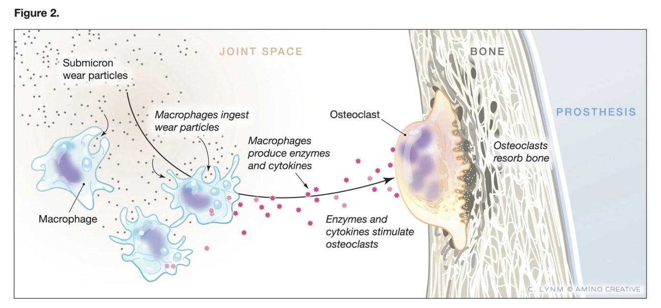Hip replacement diagram